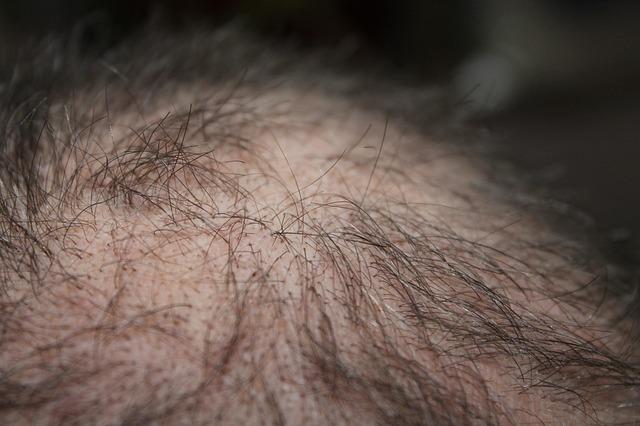 Trasplante de pelo: técnica FUE o FUSS